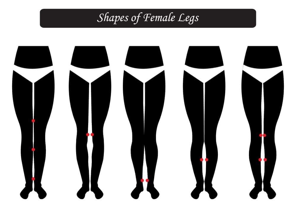 Variation In Shape Of Legs
