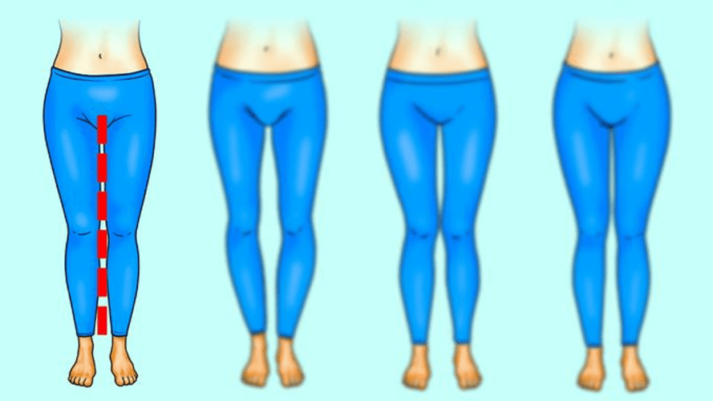 Leg Shapes